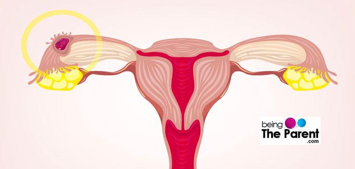 Ectopic Pregnancy Diagram