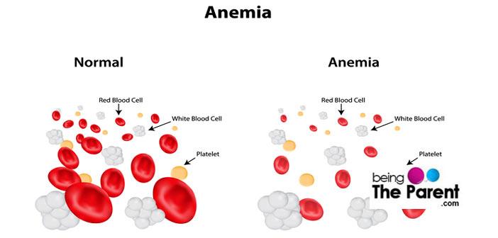 Foods to combat anemia
