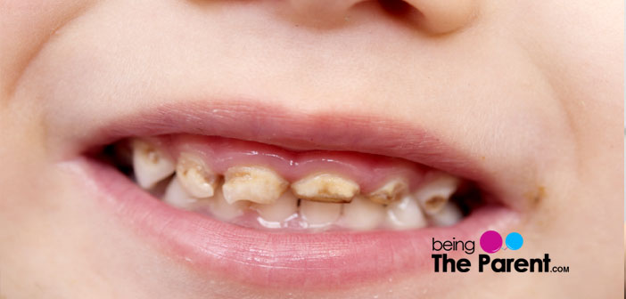 Tooth discoloration in toddler