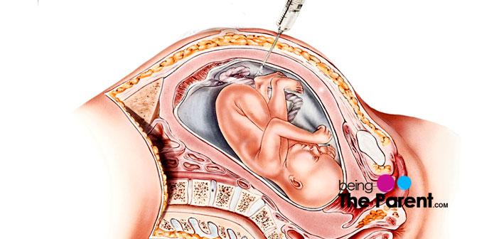 amniocentesis test