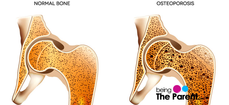 Osteoporosis and Pregnancy