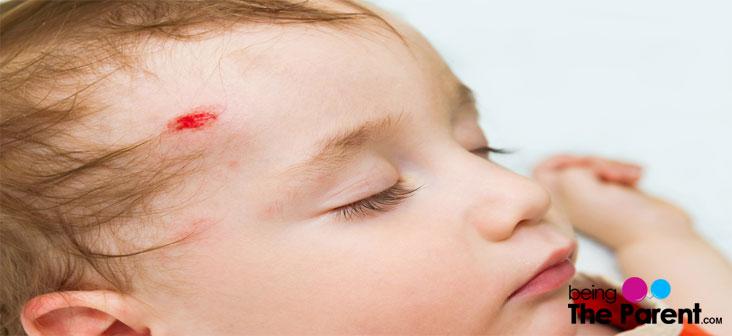 injured baby