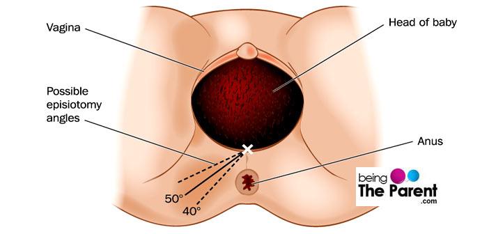 episiotomy angles