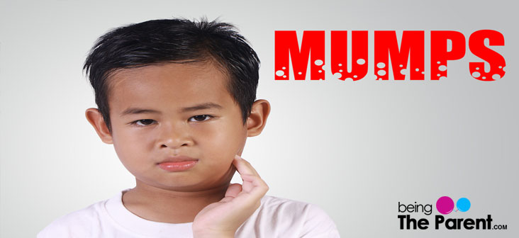 mumps in children