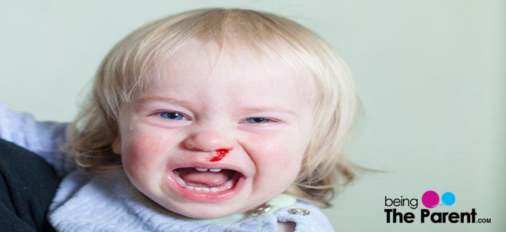 nosebleed in toddlers