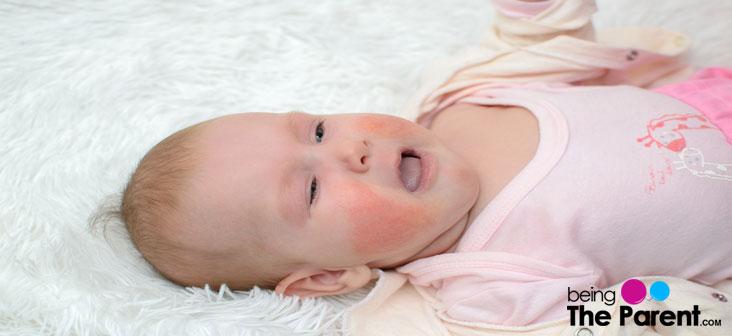 skin problem in babies