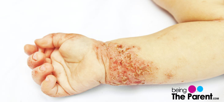 skin problems in babies