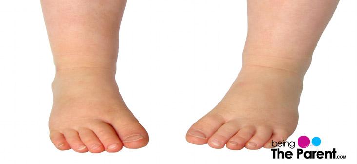 in toeing in kids