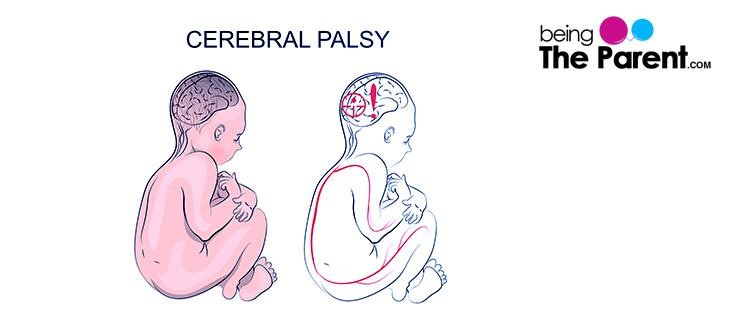 Early Signs or Symptoms of Cerebral Palsy