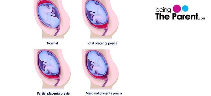 placenta-previa-types