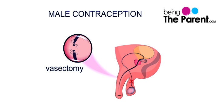 Is it possible to get pregnant after a vasectomy