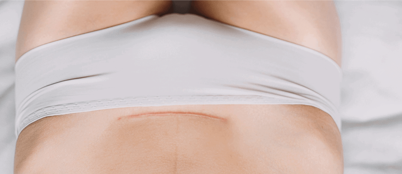 Things You Should Totally Avoid After A Cesarean