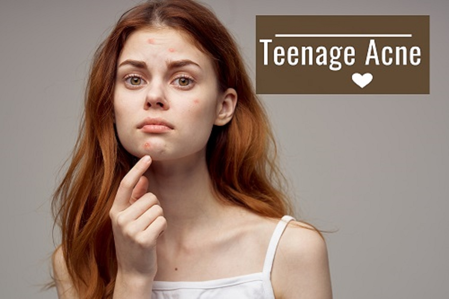 Teenage Acne and Home Remedies
