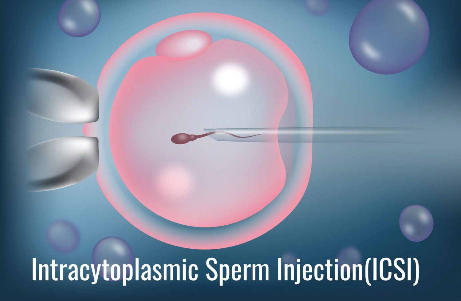 What is Intracytoplasmic Sperm Injection?