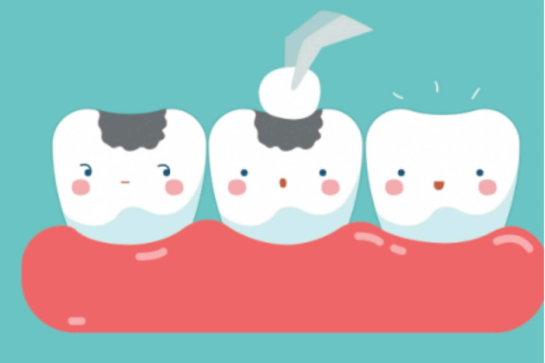 Filling in the teeth