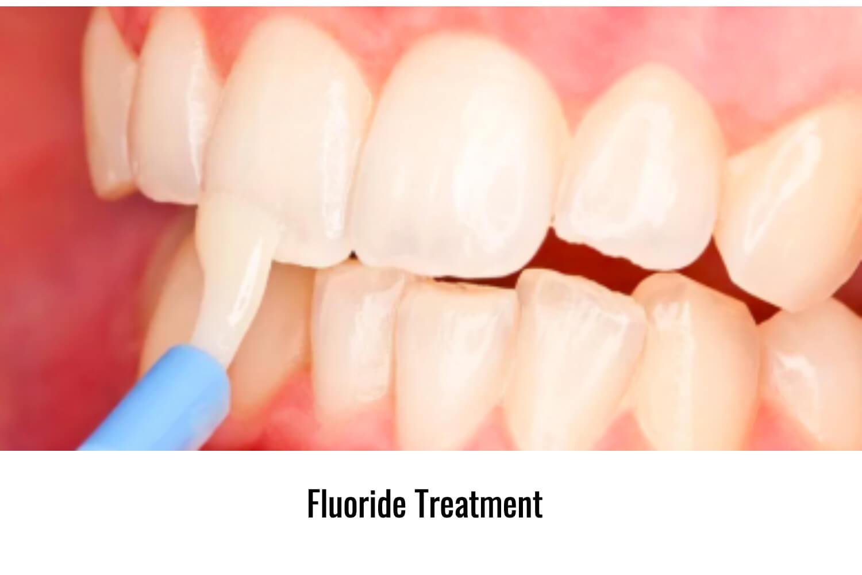 Fluoride applied on teeth