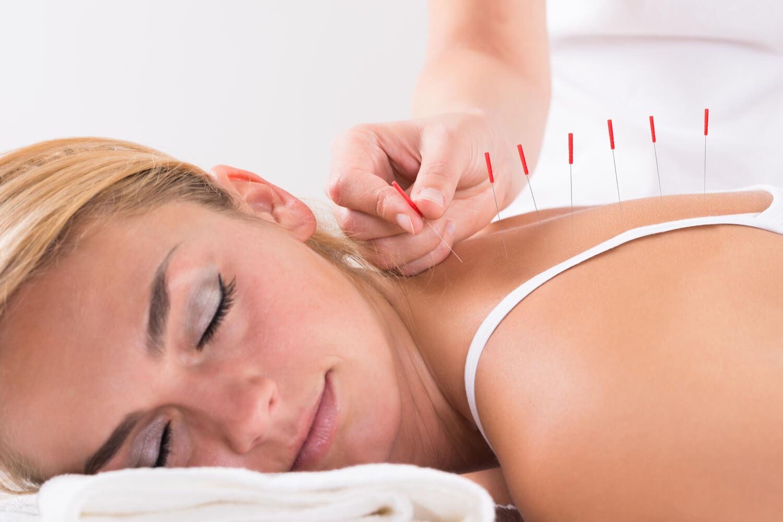 women taking acupuncture