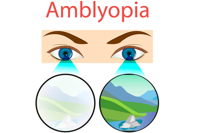 amblyopia or lazy eyes