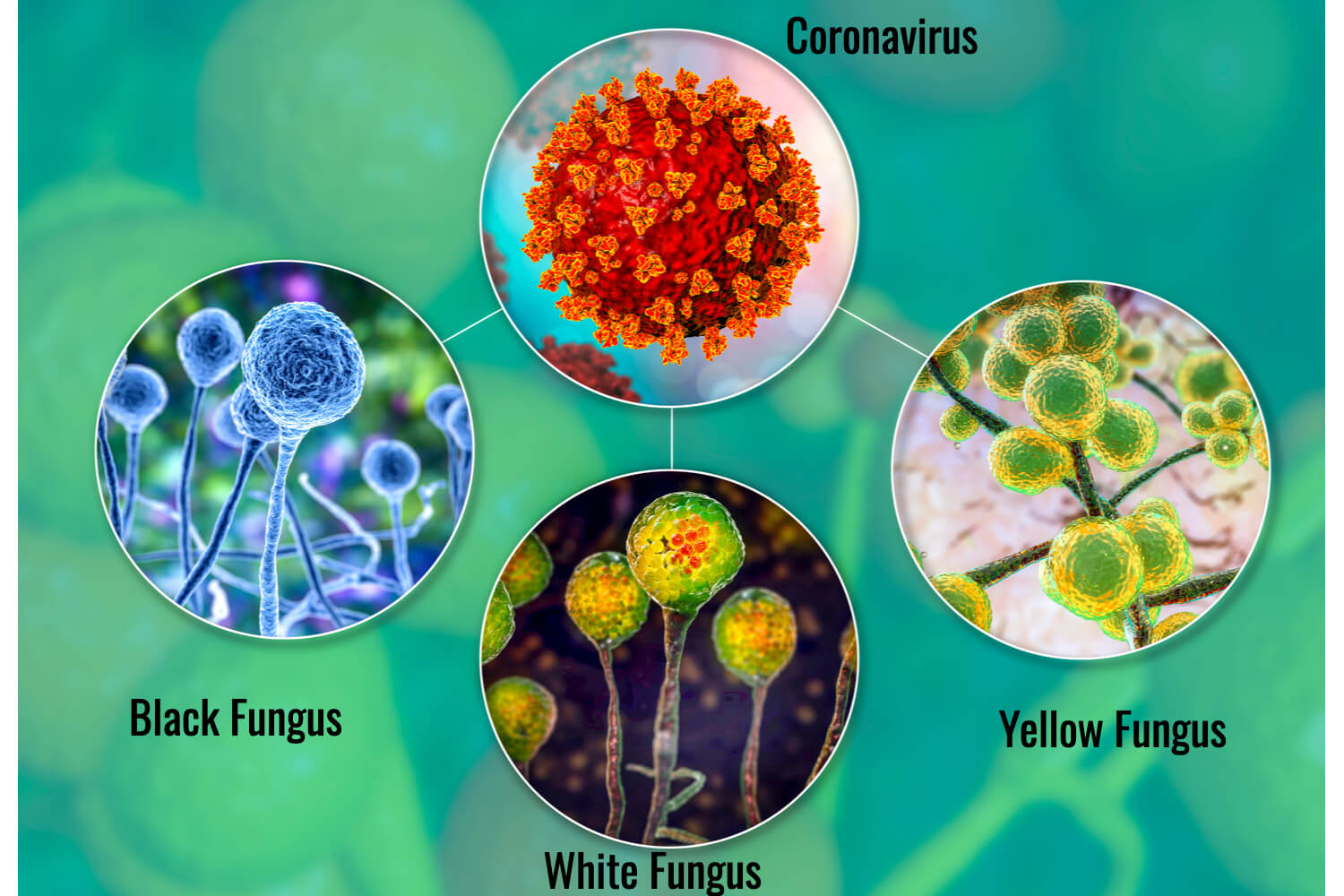 Black, White And Yellow Fungus In Kids