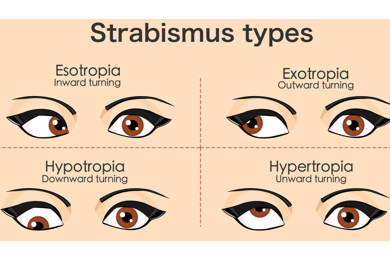types of strabismus eyes