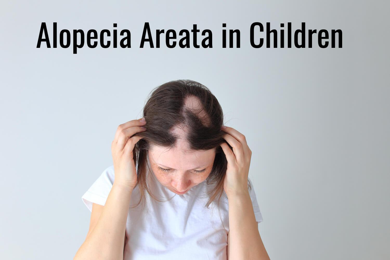 Alopecia Areata in Children: Causes & Treatment