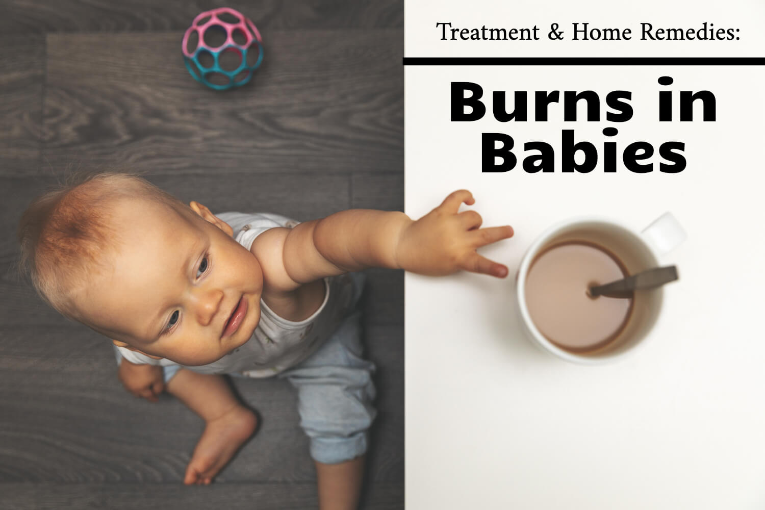 Burns in Babies: Treatment & Home Remedies