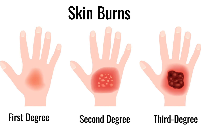 skin burn types